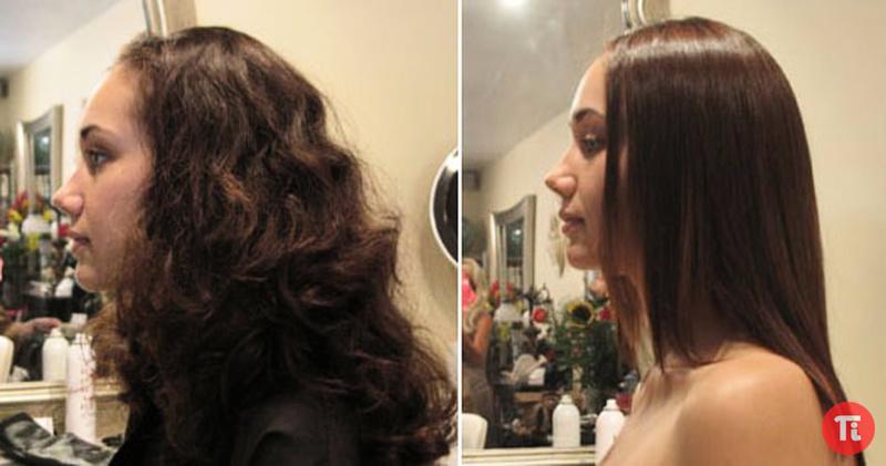 Выпадают волосы какие могут быть заболевания