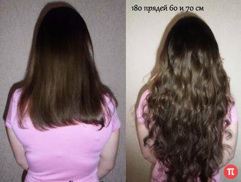 Зуд выпадение волос лечение